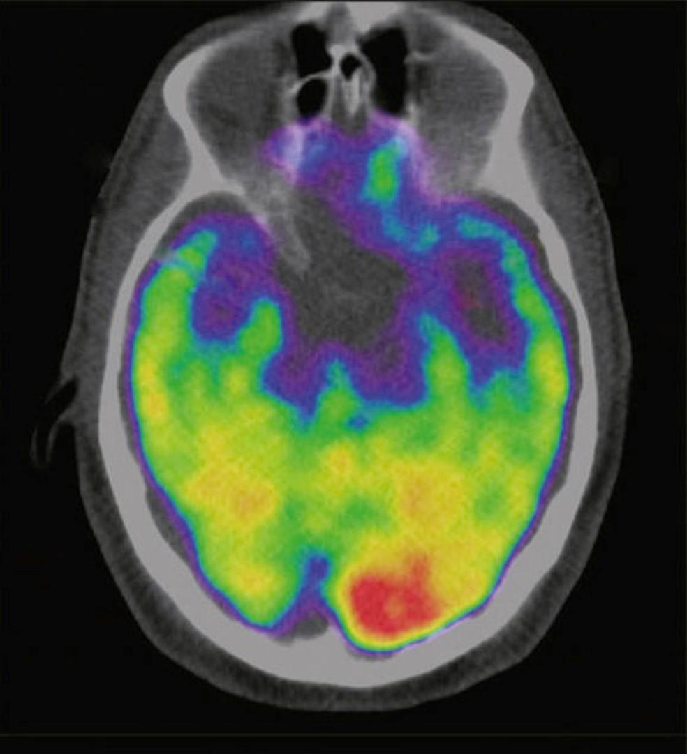 Atividade cerebral explica ligação entre estresse e risco cardíaco, indica estudo