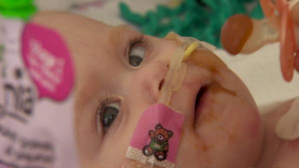 A bebê que nasceu com o coração fora do corpo - e sobreviveu