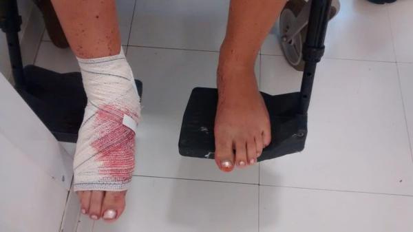 Adolescente é suspeito de atirar e atingir irmã no pé em camping de Chapecó